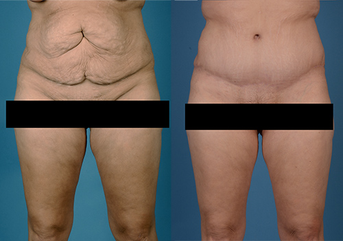 Before & After photos of Abdominoplasty
