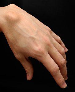 Dorsal wrist ganglion cysts